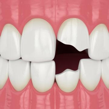 broken teeth that need emergency dentist
