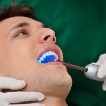 dentist using UV light for teeth whitening